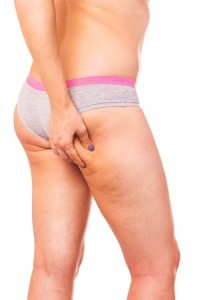 The Best Foods To Get Rid Of Cellulite